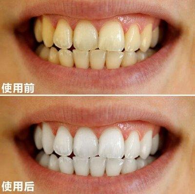 美白牙齒神器牙齒美白筆脫色劑煙漬去除祛牙漬牙菌斑