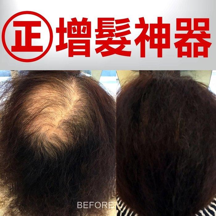 【韓國電動髮粉組】3秒髮量暴增,超強防水升級版(90天超大份量)增髮纖維25克+頭皮滋養液180ml