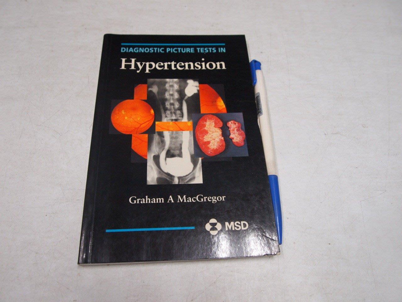 【考試院二手書】《Hypertension》│Graham A MacGregor│七成新(B11I66)