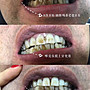 居家牙齒美白儀