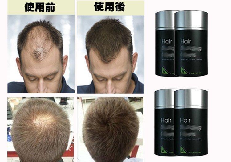 水媚兒假髮-loveable-d靜電纖維假髮,黑色4瓶共88g,另半頂式,髮片,補髮塊,遮白髮,兒童,化療,醫療,角色