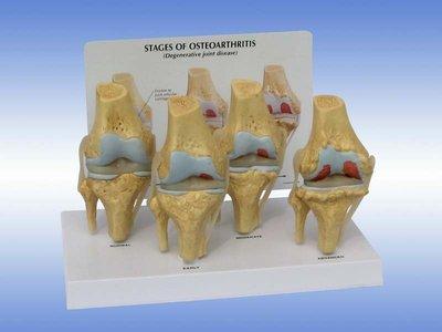 【奇滿來】膝關節模型 膝關節退化性關節炎 膝關節鏡手術溝通 人體骨骼模型  教學模型 仿真模擬 醫生護士護理 ARDH