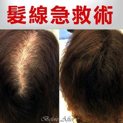 【手動髮粉10克】搶救髮線空洞--30...