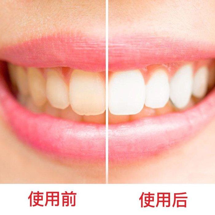 現貨秒發-牙斑淨 牙齒美白白牙素潔牙器去煙漬茶漬除牙漬黃牙牙膏洗牙粉水