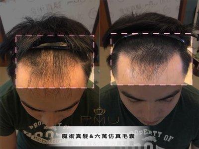【蘿茵 𝓡𝓪 𝔂𝓲 魔髮屋 ♔ 魔術魔髮】紋髮際線 紋髮 繡髮 紋繡 雕髮 植髮 男、女皆可紋髮