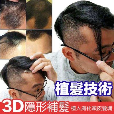 8X20公分下標區 隱形補髮塊 前額脫髮、小面積疤痕局部補髮 100%真髮可染燙【RT46】☆雙兒網☆