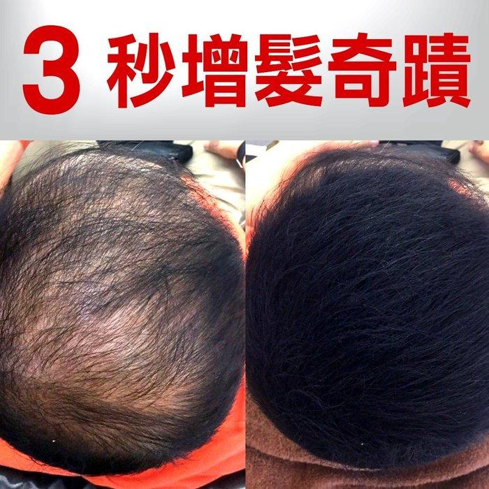 【電動髮粉組】拒當髮老王--全台獨家增髮神器➤超吸附終極髮粉!大水沖擊~不流黑水不脫落--可同時搭配生髮產品使用