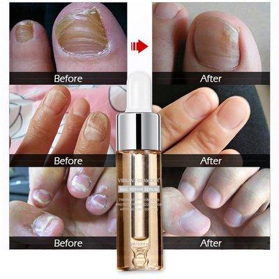 【愛美】買一送一Vibrant Glamour指甲修復液 手足灰指甲專用亮甲殺菌修復精華液