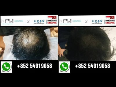 紋髮際線 織髮達人 毛囊仿真技術 紋髮專家