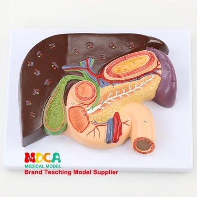 肝臟模型十二指腸膽結石模型脾臟解剖模型醫學教學 MGZ004