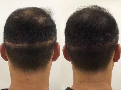 【蘿茵 𝓡𝓪 𝔂𝓲 魔髮屋 ♔ 魔術魔髮】植髮疤痕 NPM 紋髮 繡髮 紋繡  髮粉 繡髮際線 假髮 髮片 落健