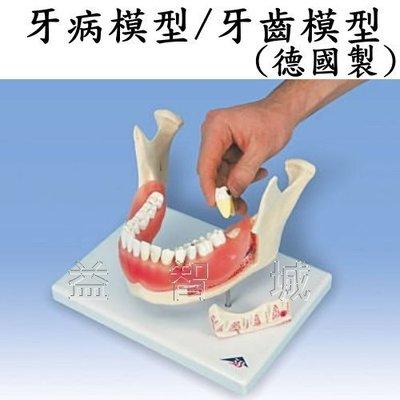 益智城《人體模型/牙模型/教學模型》牙病模型/牙齒模型(16顆牙齒可拆下,2倍大,蛀齒,齒菌斑,牙結石,牙周病)德國製