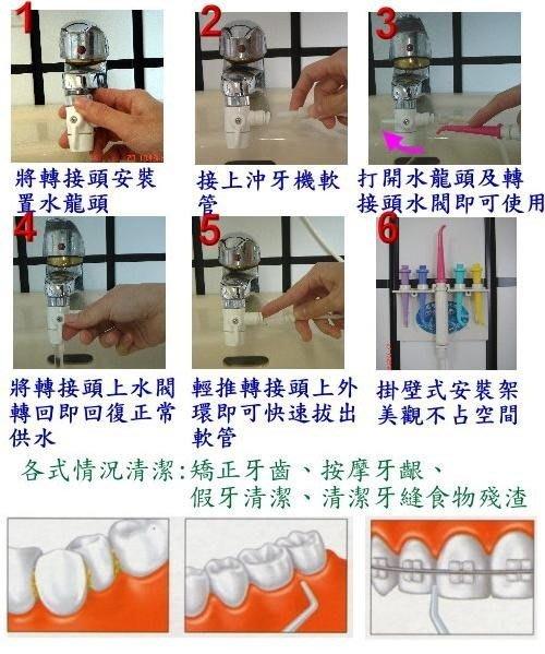 輯穩牙套、牙齒矯正沖牙器、沖牙機、洗牙機〈塑膠開關〉說明書