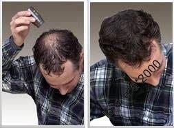 超熱賣5 秒重拾濃密頭髮 脫髮救星 增髮纖維髮粉 脫髮頭頂稀疏必備 方便易用