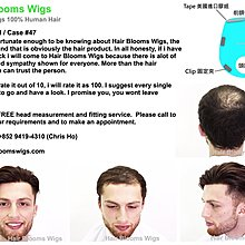 Hair Blooms Wigs: One stop solution for hair loss - human hair wig | hair piece